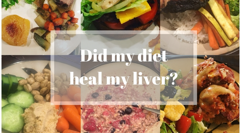 How to heal your liver with diet